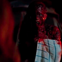 "Cringe Over This Gruesome, NSFW ""Cabin Fever: Patient Zero"" Trailer - Now in English, Finally! Plus, Screencap Gallery"